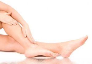 Как избавиться от отека ног