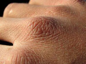 Шершавые руки. Как избавить от проблем с кожей зимой